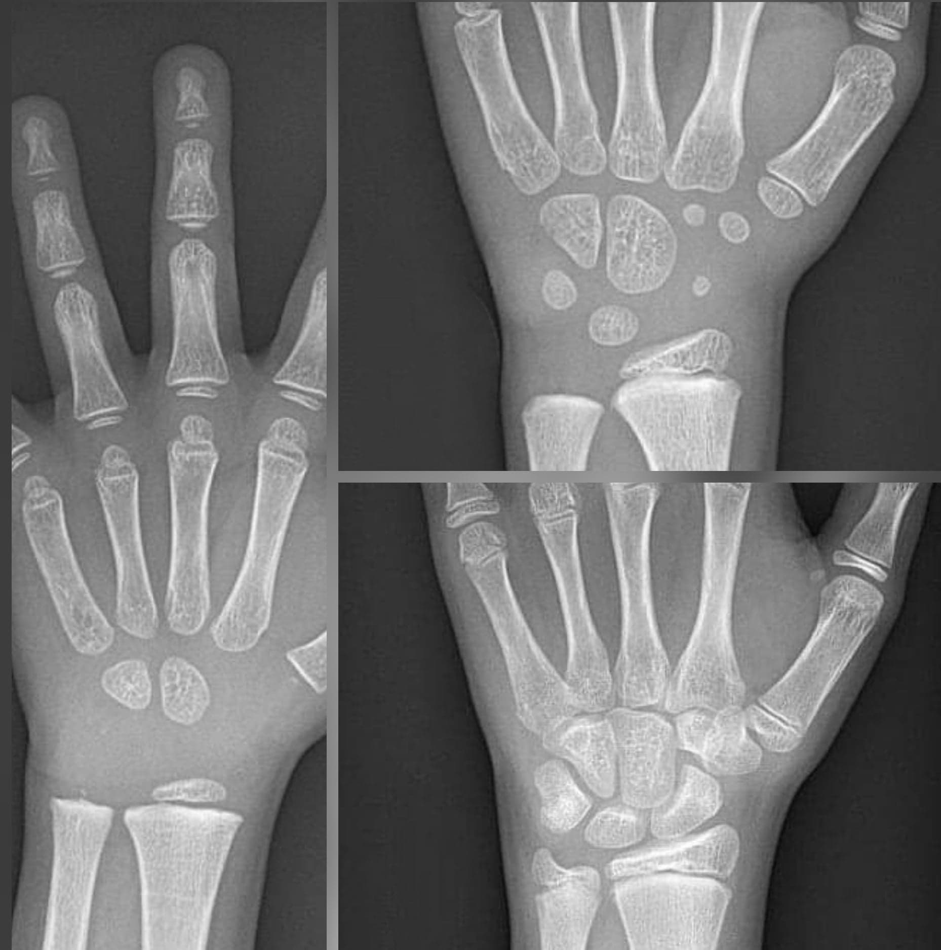 RTG ręki / nadgarstka z oceną wieku kostnego